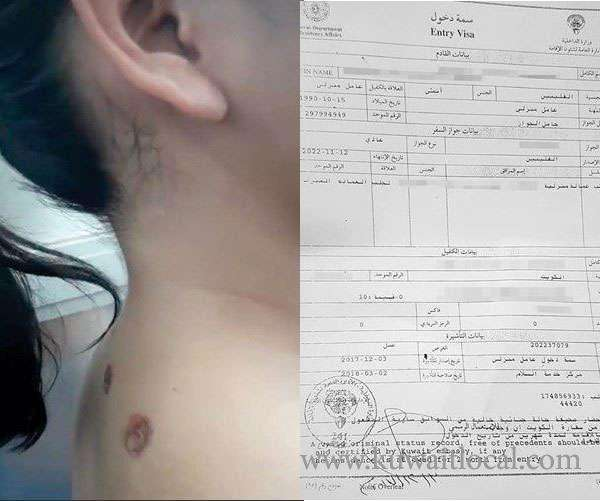 moi-is-expected-to-take-legal-action-for-abusing-filipina-maid_kuwait