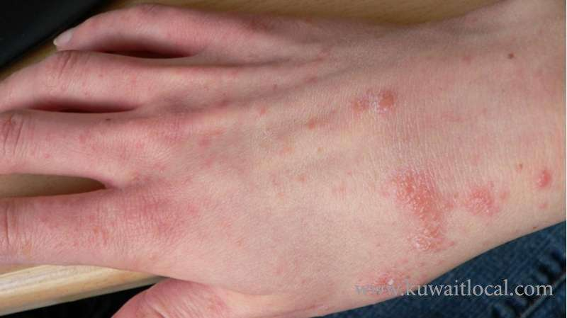 270-cases-of-scabies-have-been-recorded-in-the-country-_kuwait