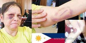 kuwaiti-employers-son-beats-filipino-house-maid-after-accusing--of-theft_kuwait