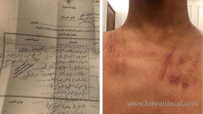 kuwaiti-filed-a-complaint-against-a-teacher-for-beating-his-son_kuwait